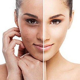 Facial from lesions microdermabrasion skin