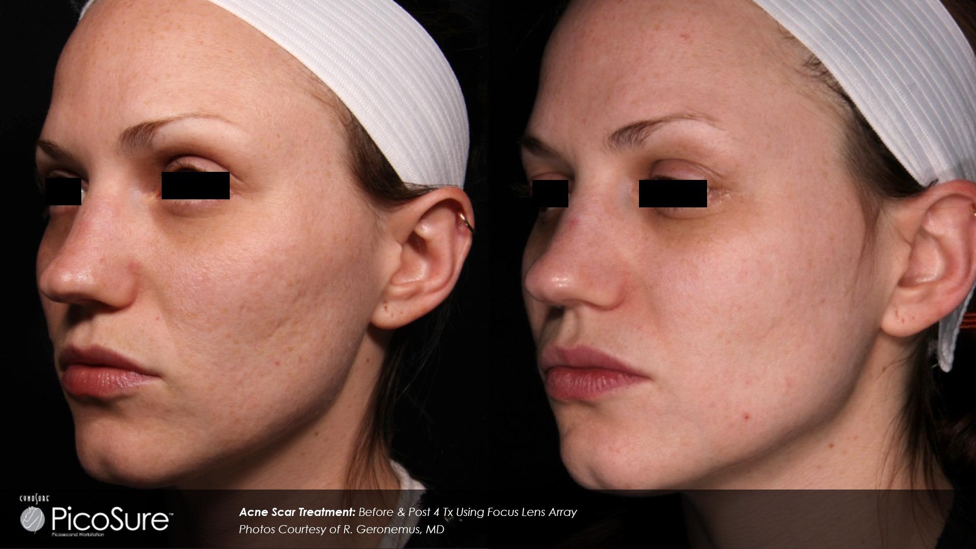 acne scar 3