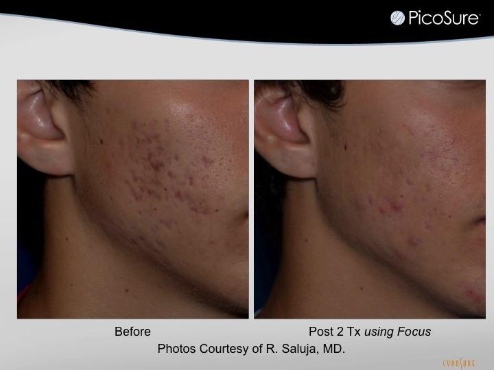 acne scar photo 1