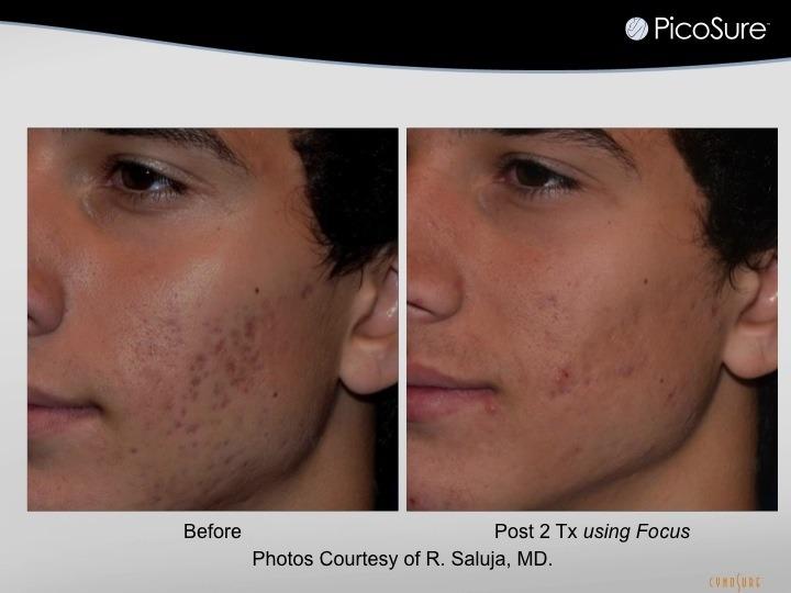 acne scar photo