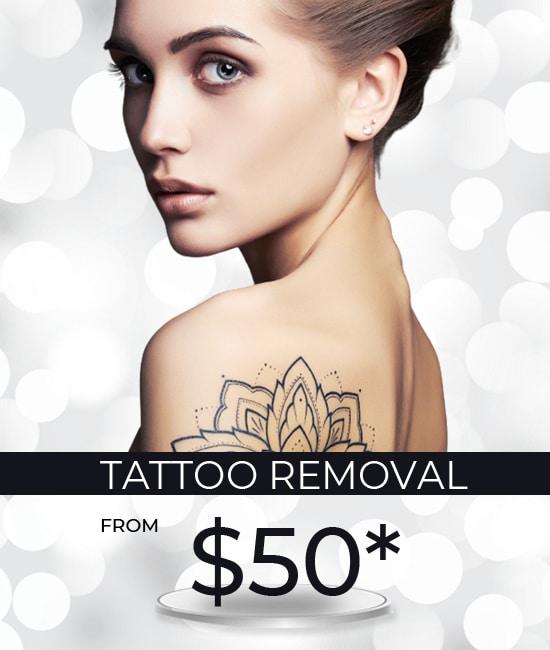 tatto removal mobile